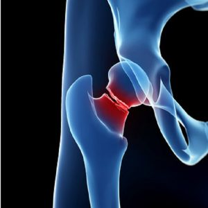 ניתוח מפרק הירך