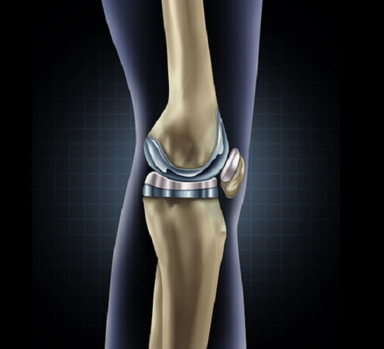 56997807 - knee replacement implant medical concept as a human leg anatomy after a prosthetic surgery as a musculoskeletal disease treatment symbol for orthopedics with 3d illustration elements.