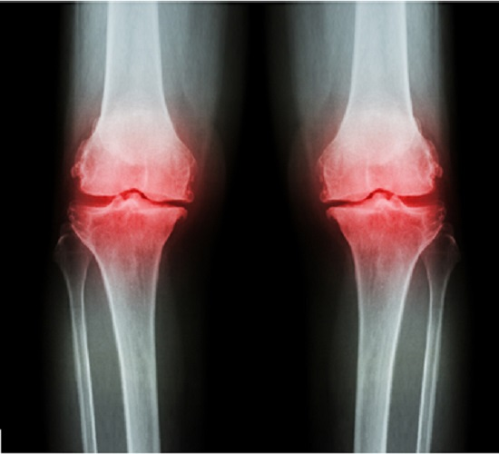 46036213 - osteoarthritis knee ( oa knee ). film x-ray both knee ( front view ) show narrow joint space ( joint cartilage loss ) , osteophyte , subchondral sclerosis